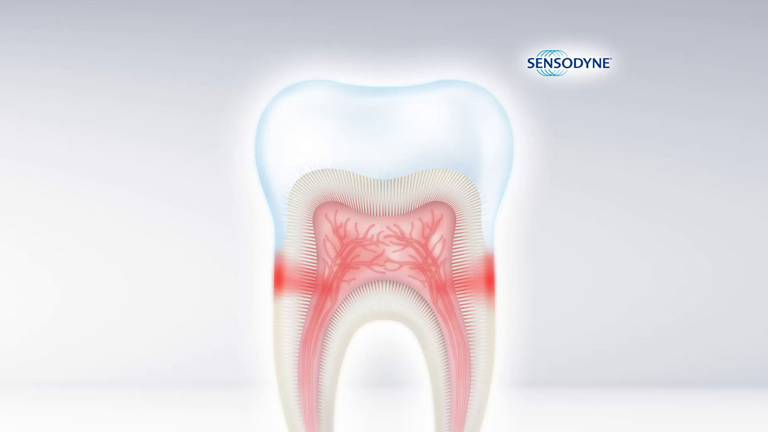 Sensodyne Science Study